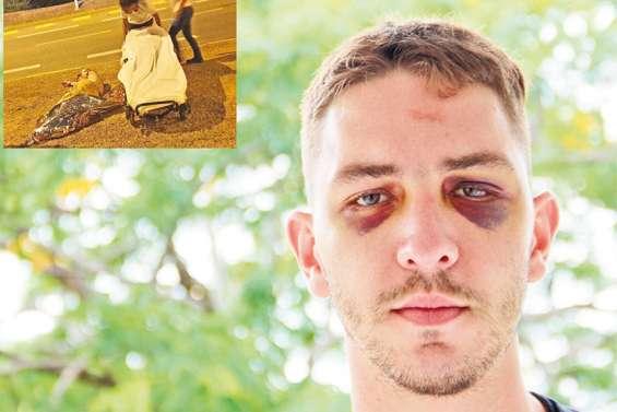 Tabassé et dépouillé à la sortie d'une boîte : « Les agresseurs ont été sans pitié »