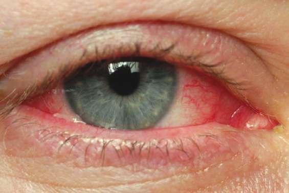 Epidémie de conjonctivite virale ultra-contagieuse
